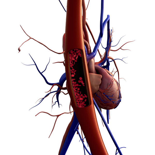 Where does coronary artery disease originate?