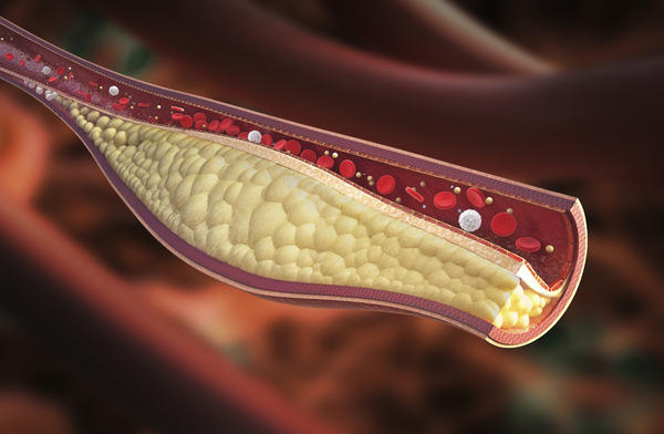 How to naturally  reduce the plaque in the arteries for coronary heart?