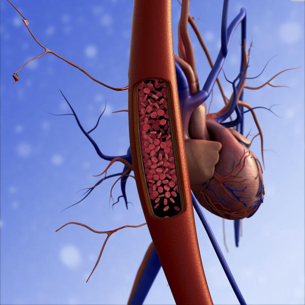 What is the definition or description of: arteriography?