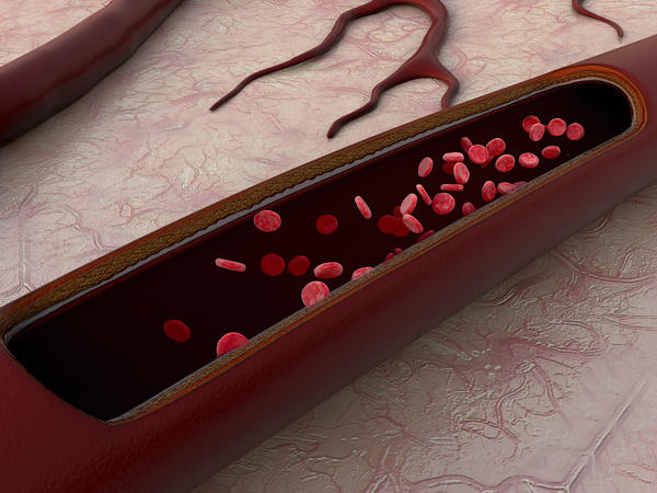 What does high blood pressure do to your arteries ?