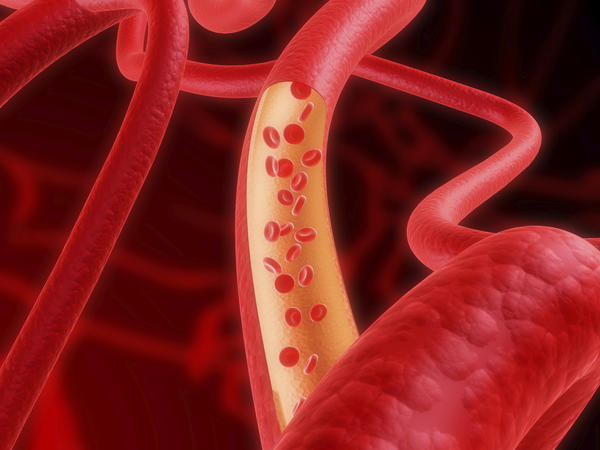 What vitamins should you take for collided arteries?