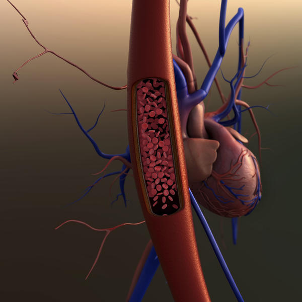 Can hardening of the arteries cause someone to become violent?