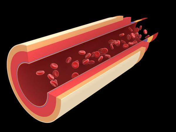 What are arterial tortuosity symptoms?