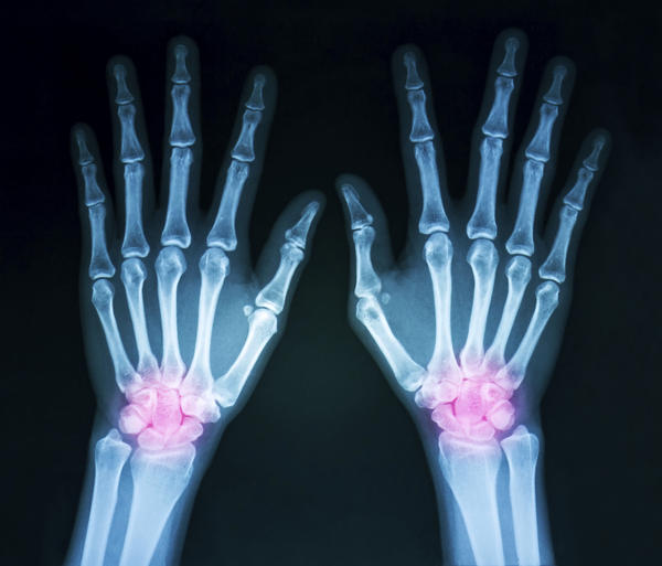Is prolotherapy better than cortisone injection for chronic wrist arthritis?