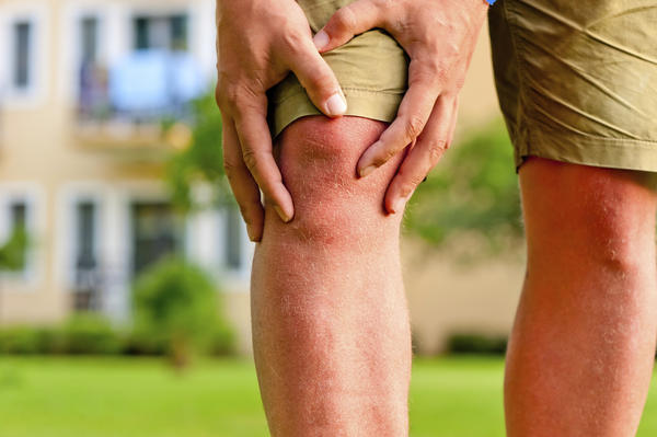 How long for knee sprain to heal with arthritis?