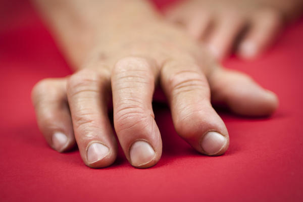 How many blood tests are taken to test for rheumatoid arthritis?