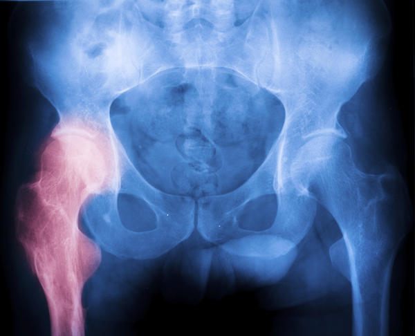 "What does ""soft tissue shadows are normal"" in a hip joint x ray mean?"