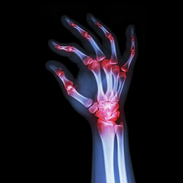 What does resveratrol do for degenerative arthritis cases?