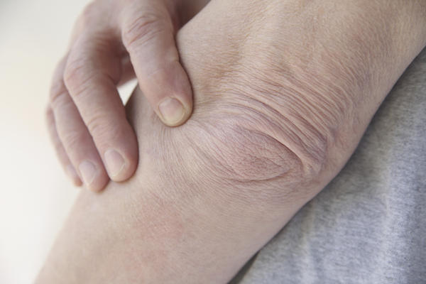 What are possible causes of stiff, painful joints in a man?