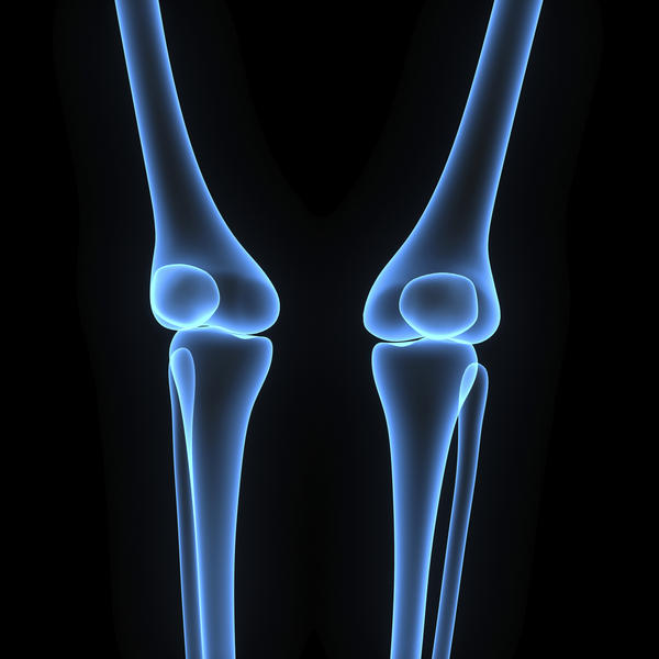 I am 46 years old with arthritis in my knees.  I have had both knees scoped and had synvisc (hylan g-f 20) in one knee to little effect.  What should I do next?