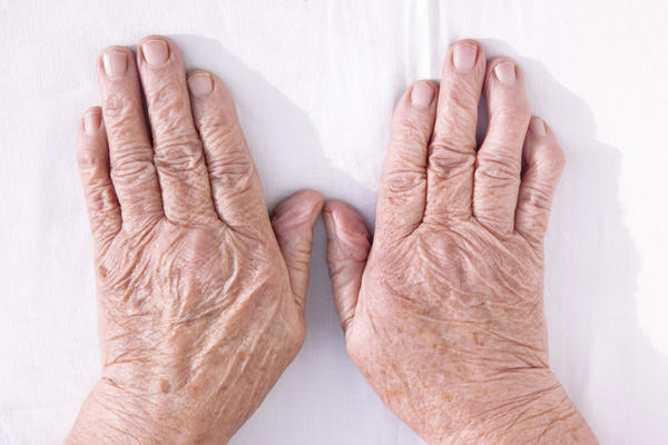 What drugs block the immune response and are used for rheumatoid arthritis and psoriasis?