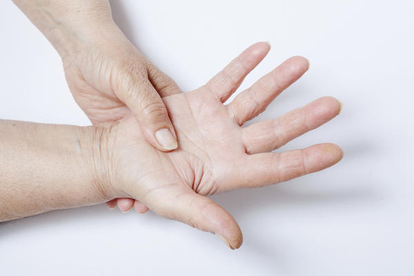 What are causes of hyperuricemia besides gout and arthritis?