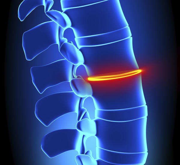 What should I do about my back/leg pain? I have a herniated disk in my l5s1 vertabrea, and have had 3 bilateral transformal steroid injections in my spine during the past 3 weeks, today my legs and back have a shooting pain going up and down and I can har