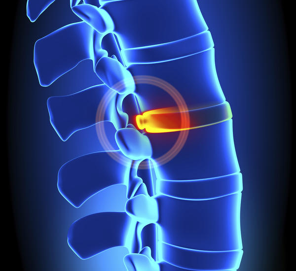 What are symptoms of herniated disk?