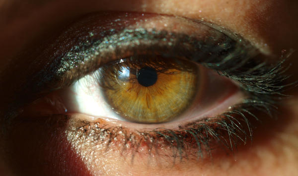 After treatment for iritis, should the eyedrops make pupil large with blurred vision?