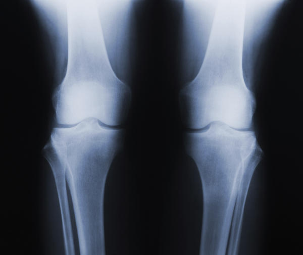 What is the chance that bone pain is caused by ewing's sarcoma? What are the usual symptoms?