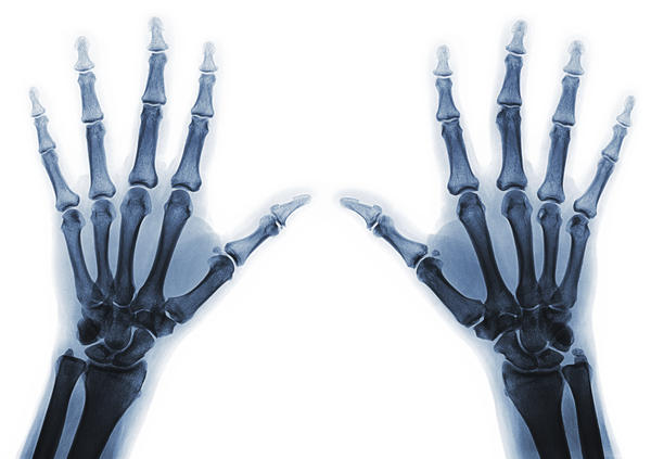 What occurs during a bone fusion surgery?