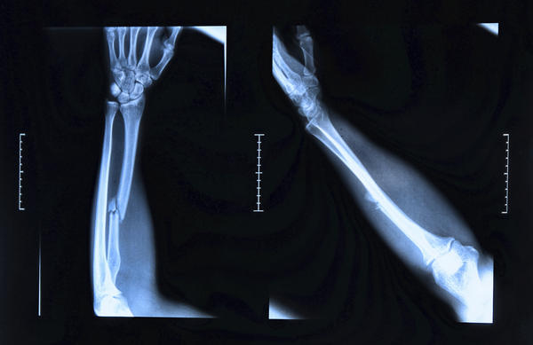 I dislocated my lunate bone in my wrist on the 5th and when I was in the er, they didn't set it. Having more pain than before. Should I go back or no?