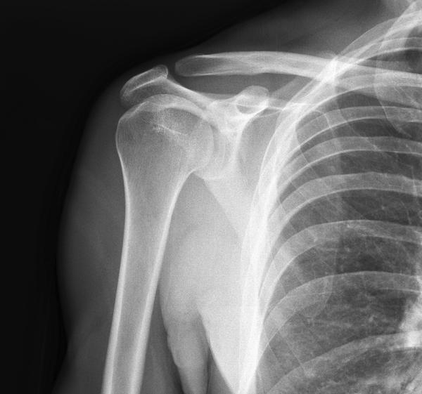What happens to your bones if you don't do weight-bearing activities?