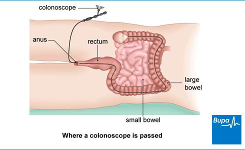 What is virtual colonoscopy? Is is reliable?