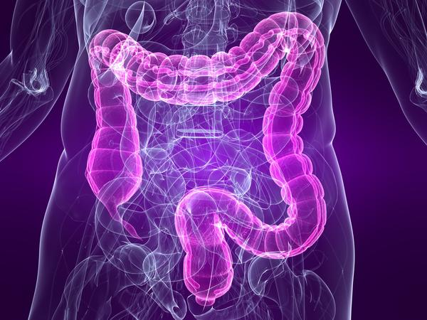 Is bowel prep for colonoscopy safe?