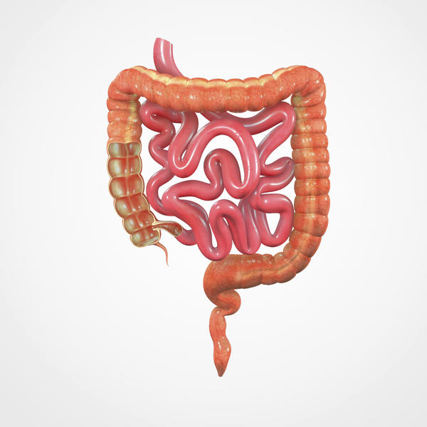 If you had to boil it down, what is bowel perforation?