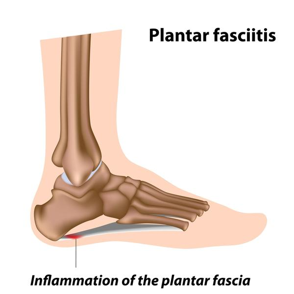 When you have acute plantar fasciitis should you rest the foot elevated or down?