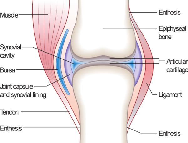 What is synovial effusion in the suprapatellar bursa and synovitis?