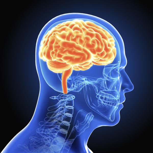 What is chronic white matter Ischemia and what are the symptoms?