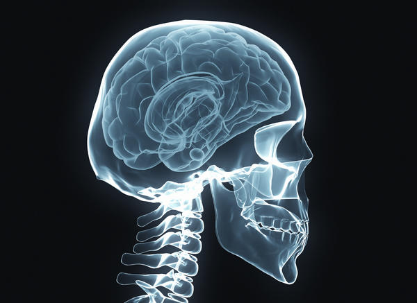 What is calcium build up in the brain? What causes it?