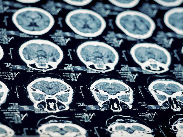 Could a mri/ct scan detect all brain injurys?