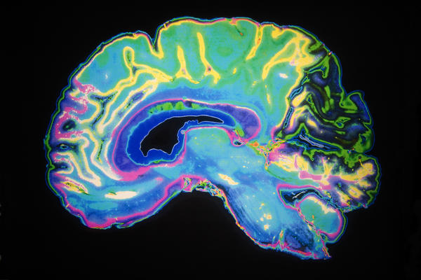Would a brain MRI without contrast show everything?