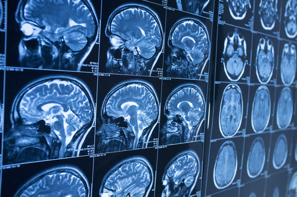How many different stages of brain cancer are there?