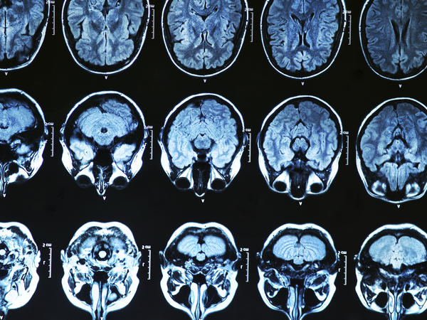 How typical is it for cancer to spread to different parts of the brain?