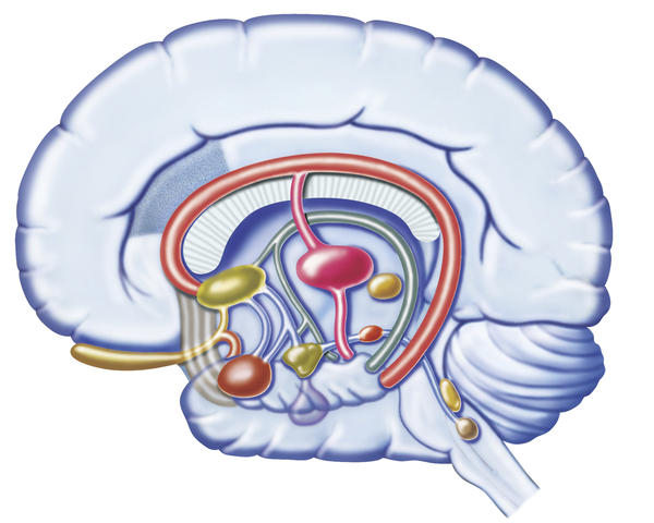 How is a brain aneurysm misdiagnosed as sinus problems?