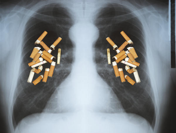 What can I do to control my pain after lung cancer surgery?