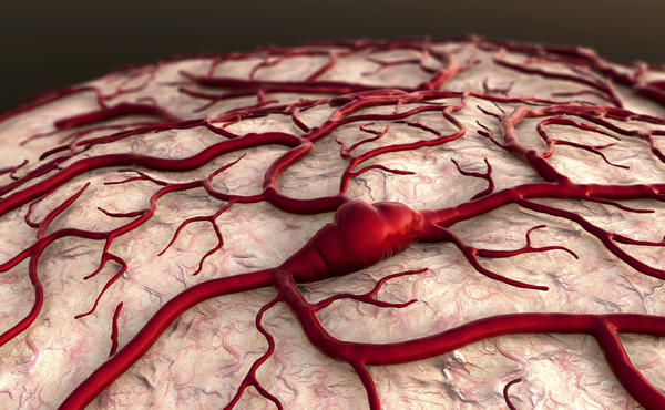 How long can you live with a brain aneurysm untreated?