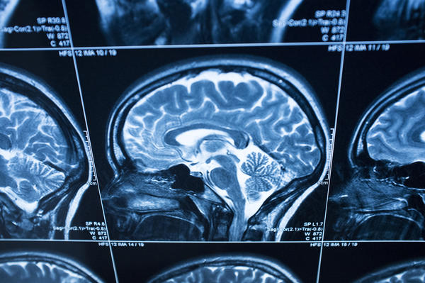 Which type of brain tumor causes hallucinations?