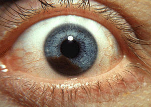 How can  a traumatic eye injury cause a change in iris color?