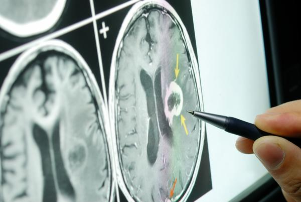 Could brain MRI scans an accurate evidence for typical mental illness such as dementia, schizophrenia?