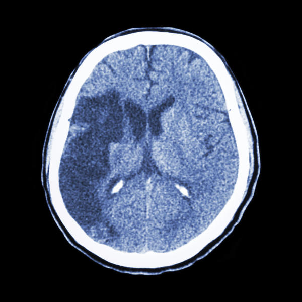 I have dystonia and black spots on my mri brain scan - could the 2 be related? I had a rta nearly 4 years ago but symptoms since & worsened after 2yrs