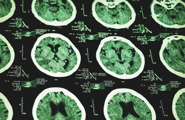 Is a cyst on the brain deadly?