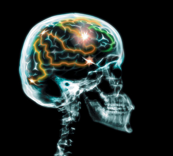 What are the signs and symptoms of brain hemorrhage?
