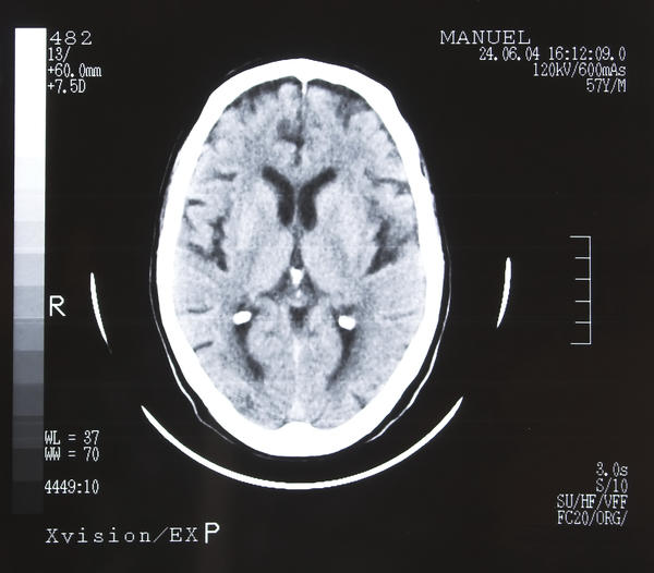 I have a demyelinating brain disease confirmed by mri. What precautions or life changes should I take?