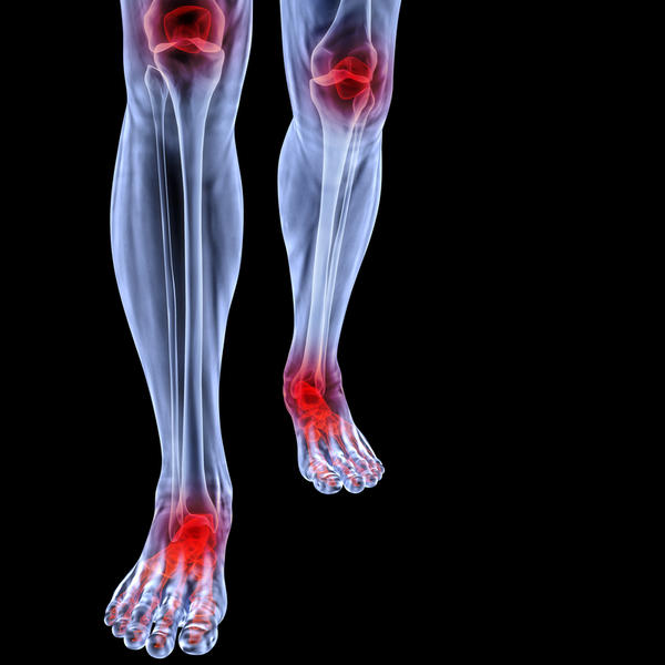 What is the main difference between osteoarthritis and rheumatoid arthritis?