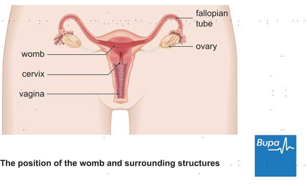 What is the condition where you have ovarian cysts, blocked fallopian tubes & a sticking uterus?