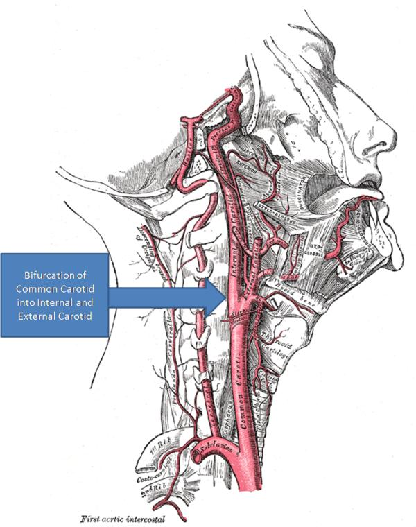 Can a 3 mm thyroid nodule cause carotid artery occlusion?