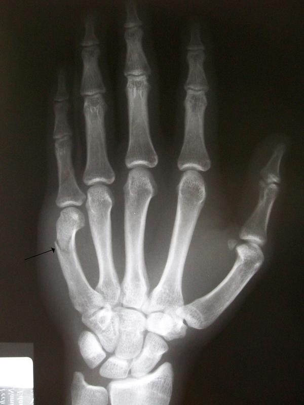 Does a broken hand hurt once cast is removed?