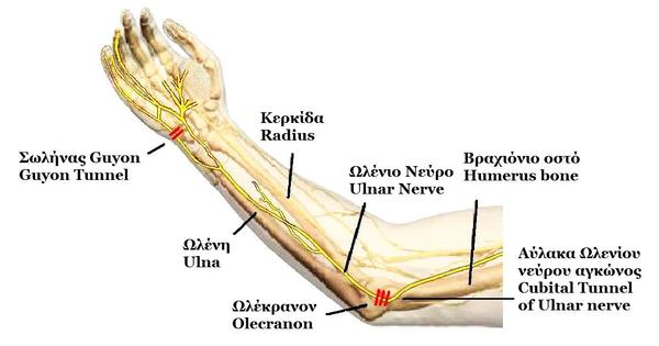Cubital tunnel syndrome involves which tendons or muscles?