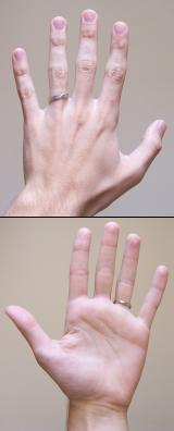 What are the symptoms of a ganglion cyst vs carpal tunnel?
